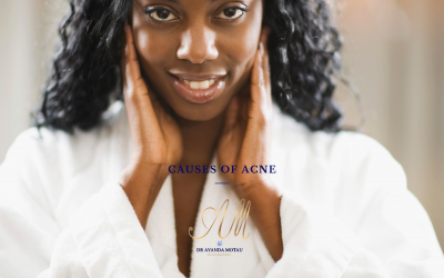 The Causes of Acne